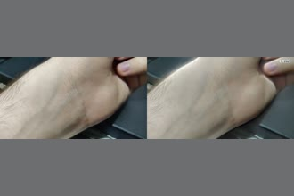 a thumdnail for published video. My wrist